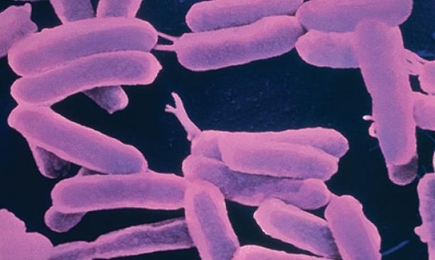 Pseudomonas aeruginosa bacteria swim upstream to get into hospital pipes and patient catheters. Professor Zemer Gitai studies how these bacteria are able to move into hard-to-reach environments.