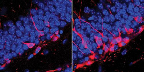 The image on the right shows new neurons (in pink) in the brains of adult mice after spending time in naturalistic settings at the Stony Ford Center. At left are the brains of mice kept in control conditions, showing less adult neurogenesis.